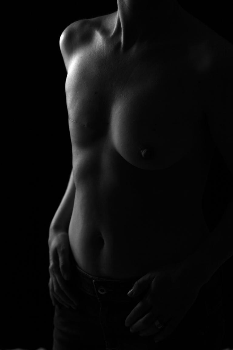 cancer du sein2 sabine desprats bologna
