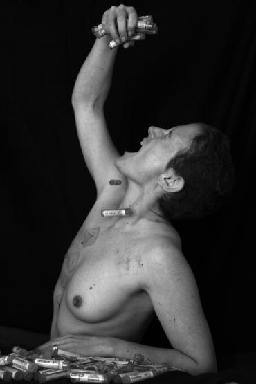 cancer du sein20 sabine desprats bologna
