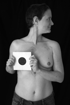 cancer du sein6 sabine desprats bologna